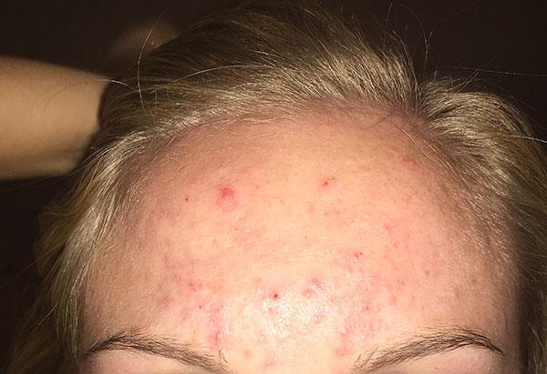 Высыпания на коже после инъекций ботулотоксина