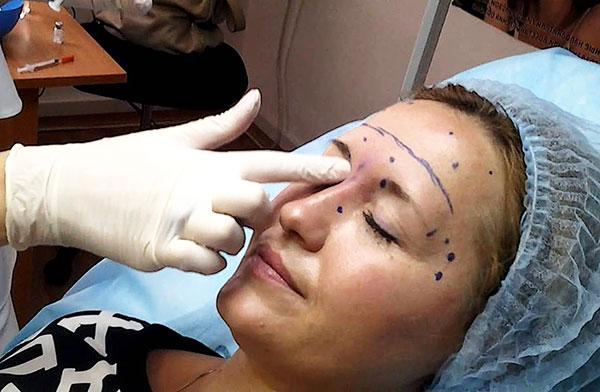 Косметолог определяет места для введения препарата ботулотоксина