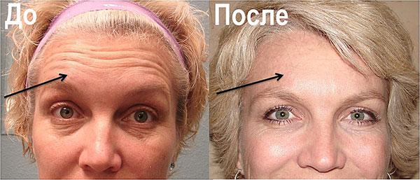 Ботокс от морщин на лбу (до и после процедуры)