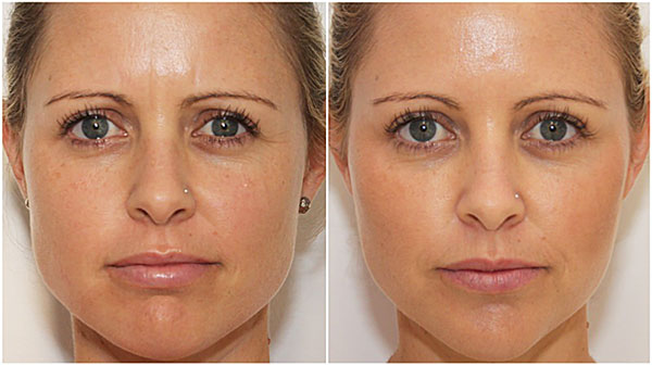 Коррекция овала лица препаратами ботулотоксина